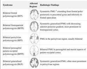Polymicrogyria affected brain regions